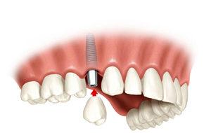 Методы восстановления утраченых зубов
