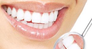 Безопасное отбеливание зубов пероксидом карбамида