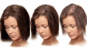 Alopetsiya u zhenshhin prichiny i sposoby borby