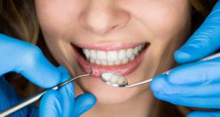Виды имплантов для зубов