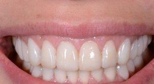 koronka na zuby