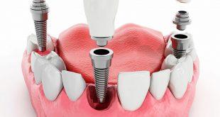 metodiki implantatsii zubov